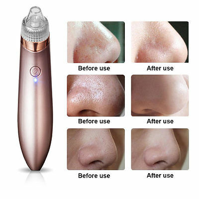 New Electric Blackhead Remover Pore Vacuum Suction Dermabrasion Face Cleaner【US】