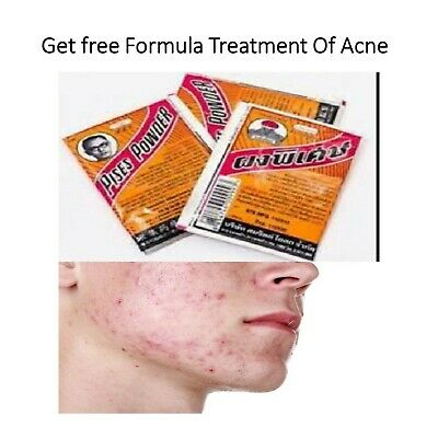 Acne & Blemish Treatments Health & Beauty 9x Herb Pises Powder Fights Facial Bacteria Acne Pimple Chronic Ulcers Burn Cuts