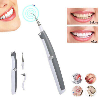 Electric Sonic Dental Tooth Stain Polisher Teeth Whitener Plaque Eraser Remover