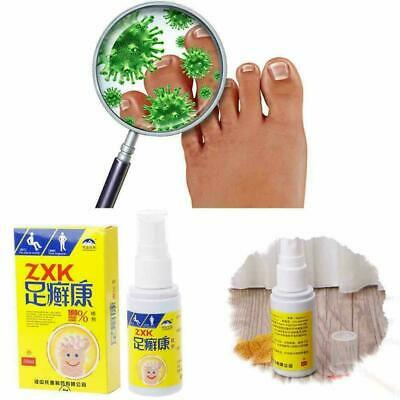 Anti-Itch Foot Care Fungal And antibacterial Deodorant spray Foot Powder Z2S1