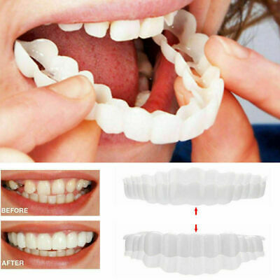 Cosmetic Dentistry Snap Instant Perfect Smile Comfort 1A Teeth Ven O7O4