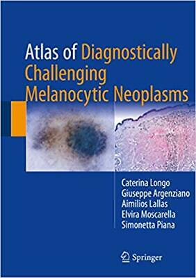[PDF] Atlas of Diagnostically Challenging Melanocytic Neoplasms 1st Edition, ...