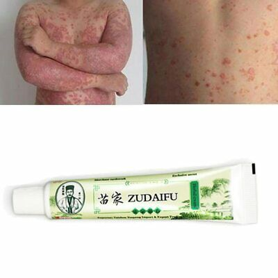 20X Skin Care Cream Dermatitis Eczematoid Ointment Treatment Psoriasis Cream