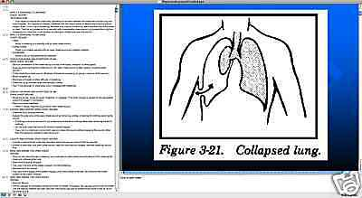 682 page PHYSICIAN ASSISTANT PA-C BTLS Life Saver PowerPoint Presentation on CD