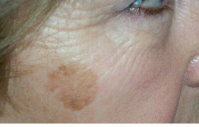 Sun spot, Age spot, Brown spot, Dark spot, Remover/Treatment, Corrector NO SCAM!