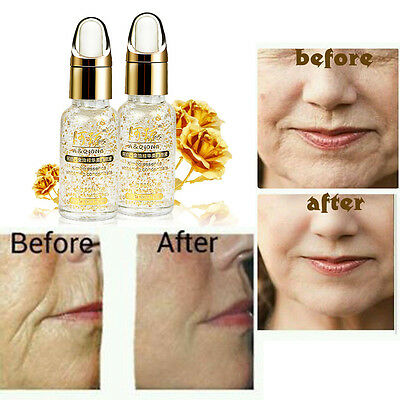 Hyaluronic Acid 24kt Gold The Best Anti Ageing Wrinkle Face Whitening Serum M