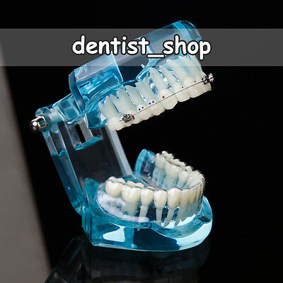 Dental Ortho Teeth Model with Invisalign & Self-ligating & Ceramic Braces - BLUE