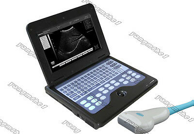 HOT 2014 NEW Software Full Digital Laptop Ultrasound Scanner with linear probe