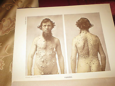 Rare 1905 Photographic Atlas Of The Diseases Of The Skin 4 Volumes G. H. Fox