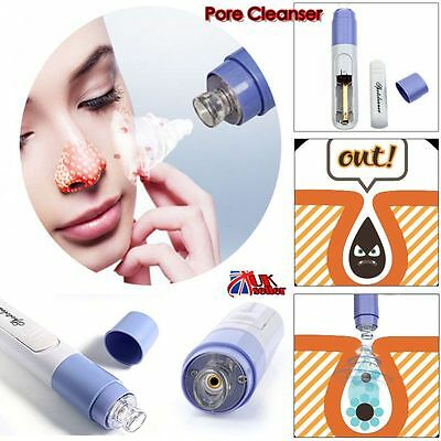 Electric Facial Pore Cleanser Face Zit Acne Blackhead Remover Skin Cleaner Tool