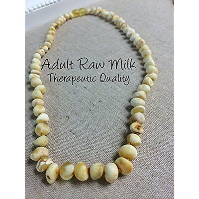 Baltic Amber Necklace for Adults Raw Milk 18 Arthritis Carpal Tunnel Sciatica