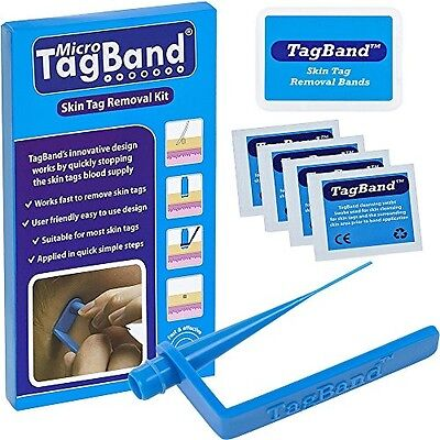 Micro TagBand Skin Tag Remover Device for Small to Medium Skin Tags Removal Band