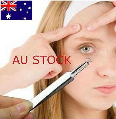 Blackhead Acne Curved Stainless Steel Pimple Clip Remover Comedone Face Cleaner