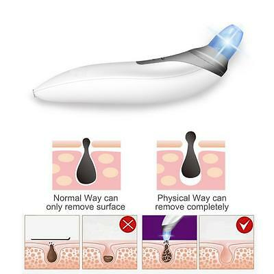 2017 blackhead remover vacuum suction diamond gommage microdermabrasion fixe AH