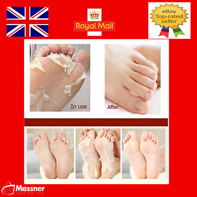 Exfoliating Foot Mask Dead Skin Remover Peel Off Baby Soft Skin Socks Callus Bag