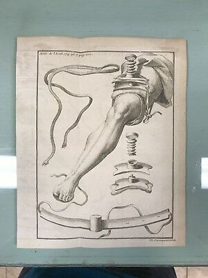 I8th c. Medical Engraving Print Surgical Engraving science French Royal Academy