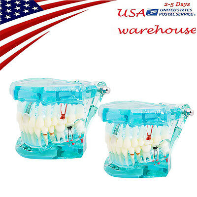 2PCS Teach Study Adult Standard Typodont Demonstration Transparent Teeth Modle