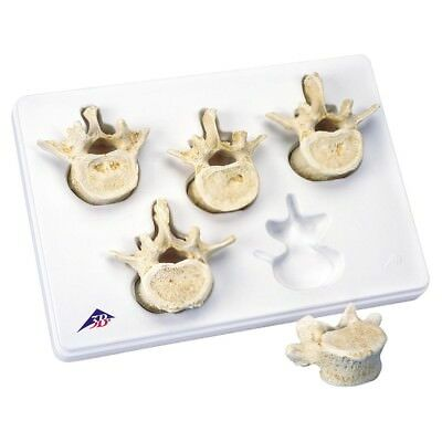 Set of 5 Lumbar Vertebrae  1 EA