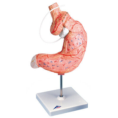 Gastric Band Model  1 EA