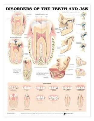 Disorders of the Teeth and Jaw -  Dental * Anatomy Poster * Anatomical Chart