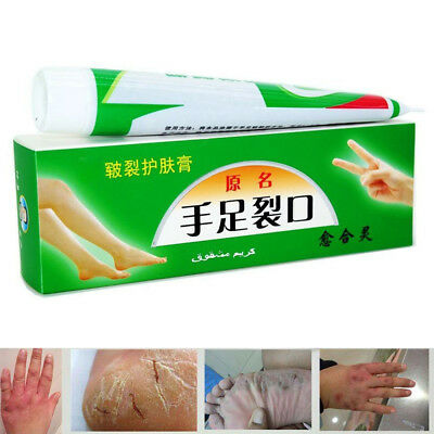 Hand Foot Crack Cream Heel Chapped Peeling Anti-dry Repair Cream Skin Care