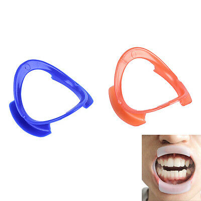 1/5X O-type Dental Teeth Whitening Cheek Retractor Lip Mouth Opener HolderH2
