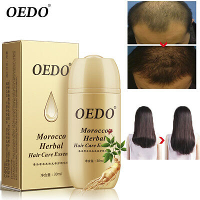30ml Morocco Herbal Hair Care Essence Loss Treatment Fast Regrowth for Men Women