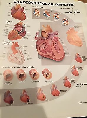 Cardiovascular Disease * Cardiology * Anatomy Poster * Anatomical Chart Company