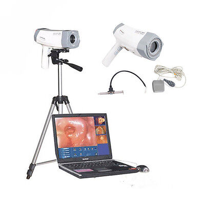 800,000pixels Gynecology Digital Video Electronic Colposcope SONY Quality Tripod