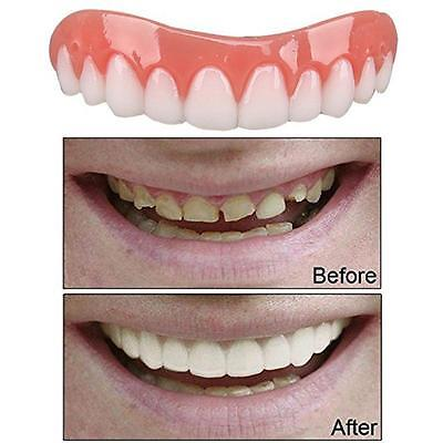 1x Smile Veneers Denture Paste Teeth Flex Fit Press on Veneers Covers Charm
