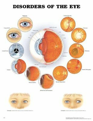Disorders of the Eye * Ophthalmology * Anatomy Poster * Anatomical Chart Comp.
