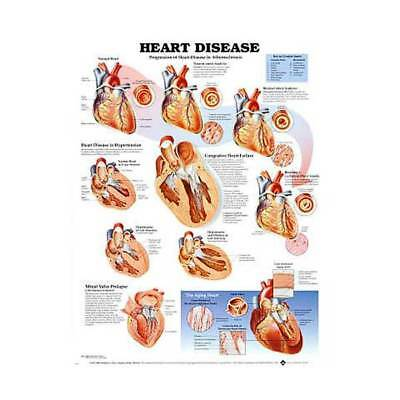 Heart Disease * Cardiology * Anatomy Poster * Anatomical Chart Company