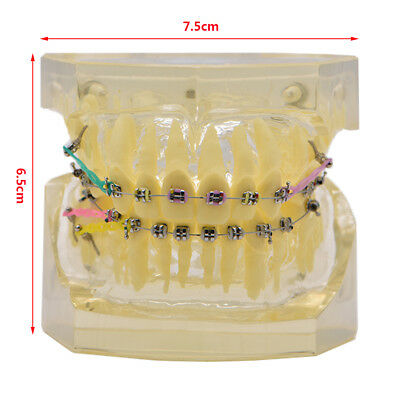 1Pc Ortho Dental Transparent Standard Teeth Model With Brackets Hoops #3005-2