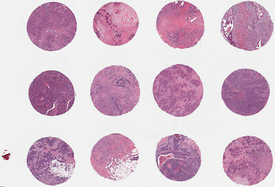 TMA Arraymold Tissue Microarray 4mm 15 Core Pathology Histology Research Inst.