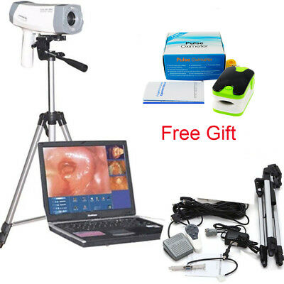 Digital Video Electronic Colposcope SONY Pix Camera Software&Tripod medical tool