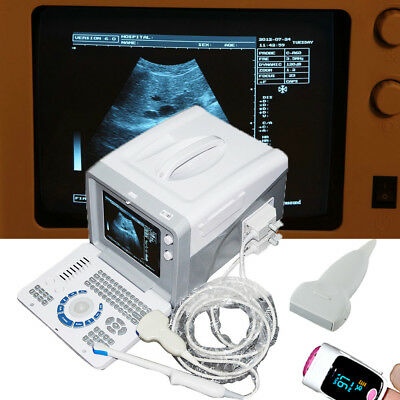 Digital 3D Ultrasound Scanner+Linear+Transvaginal+ Convex 3 Probes health care A