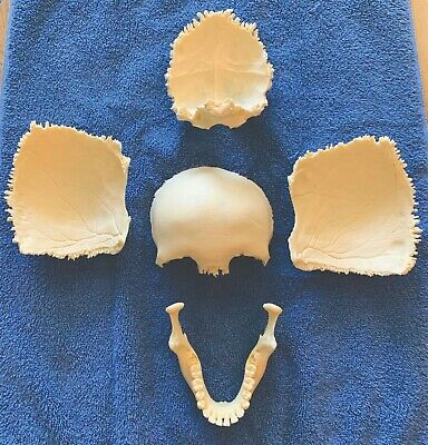 Disarticulated Skull Bones Mandible Frontal Parietal Occipital