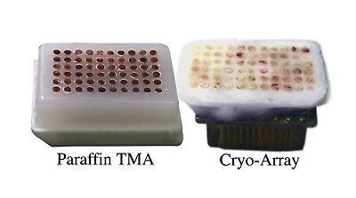 TMA Arraymold Tissue Microarray 2mm 60 Core Pathology Histology Research Inst.