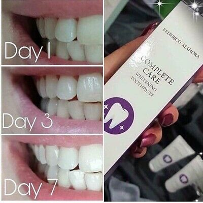 FM COMPLETE CARE - WHITENING TOOTHPASTE 75ML..x