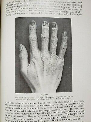Weird Vintage Osteopathic Medical Books Fractures Skin Diseases Chiropody Device