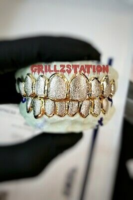 Custom Grillz Gold Teeth with Diamond dust  design