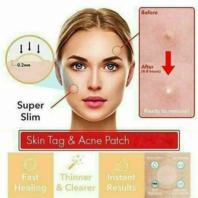 24PCS Skin Tag & Acne Patch 2019 NEW Hydrocolloid Acne and Skin Tag Remover Q