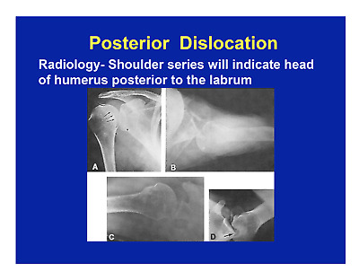 203 page Osteopathic Osteopathy SHOULDER HIP SPINE PowerPoint Presentation CD