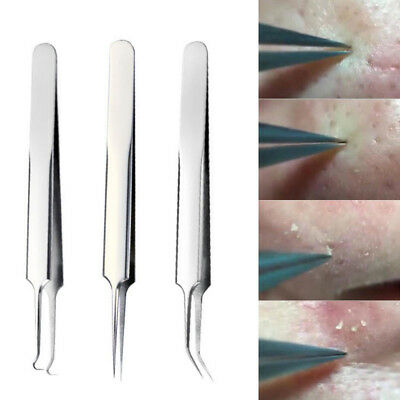 2017 Whitehead Pimple Acne Blemish Comedone Extractor Blackhead Remover Tool