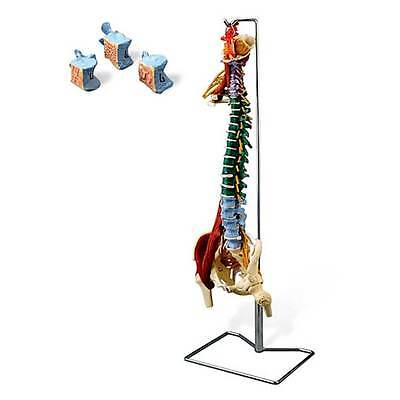 Anatomical Chart Company Muscle Spine With Disorders And Stand