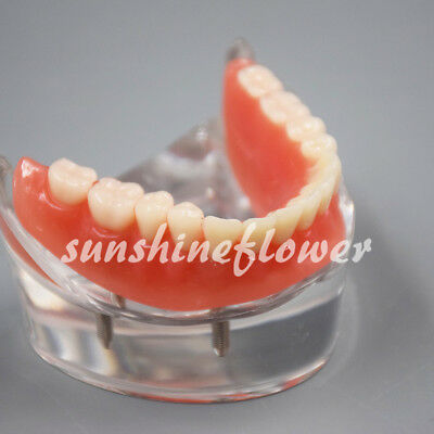 Dental Implant Restroration Model #600202 Overdenture Inferior with 4 Implants