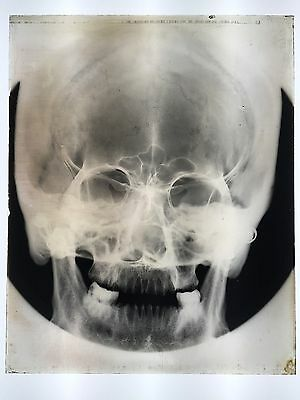 Amazing Rare Large Medical Glass Plate X-Ray Of A Human Skull - 8 X 10 Inches