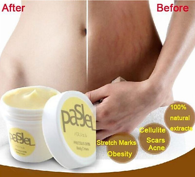 The magic Cream Save Your Body Wrinkles Scar Removal