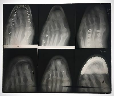 Rare Beautiful Antique Glass Plate X-Ray - 6 Feet & Toes In Shoes-Medical 10X12