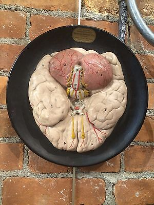 Vintage Human Anatomy Brain Model ca. 1915 American Medical Science